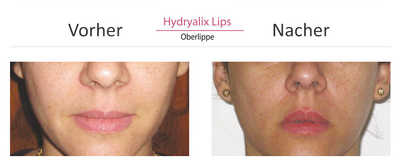 vorher-nacher-lips